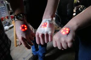 northstar LED implant